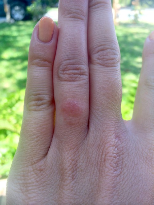 Skin irritation caused by a ring.